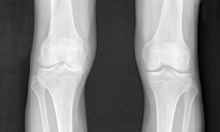 Fluorescent Probe May Help Detect, Monitor Osteoarthritis: Study