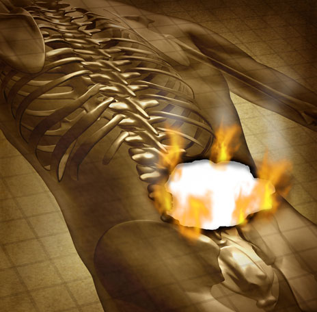 Talking Therapy/Physiotherapy Blend May Hold Promise for Chronic Low Back Pain Patients