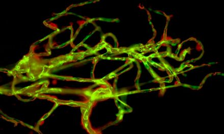 Protein In Capillaries May Impact Stroke Risk, Study Says