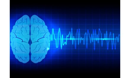 Vagus Nerve Stimulation May Be a Promising New Stroke Treatment
